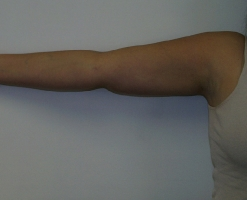 arm-liposuction-after-chevy-chase