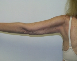 arm-liposuction-after-maryland