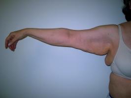 extended-brachioplasty-chevy-chase