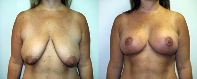 breast-lift-chevy-chase