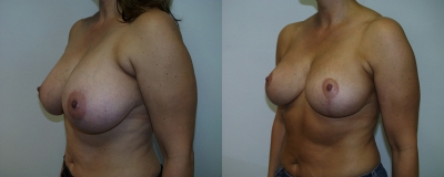 breast-reduction-chevy-chase
