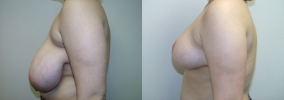breast-reduction-maryland