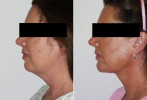 chin-implant-maryland