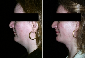 chin-augmentation-chevy-chase