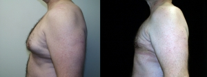male-breast-reduction-surgery-maryland