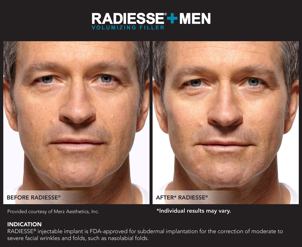 radiesse-for-men-chevy-chase-maryland